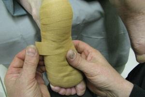 Foto 4: De ingetapete voet.