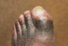 De donkere huid in de pedicure praktijk