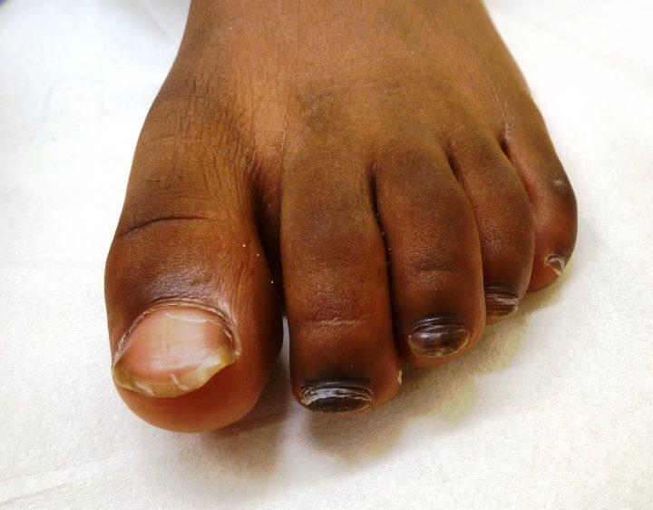 De donkere voet
