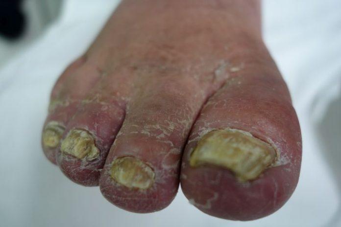 nagels en huid