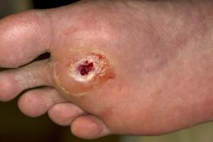 diabetes-voet ulcer