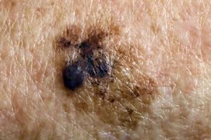 huid-kanker