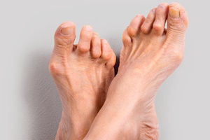 reuma-voeten