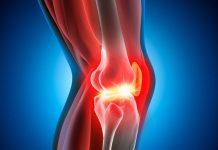 meniscus-prothese-artrose