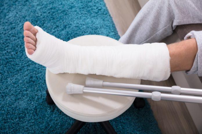 Man ondersteunt gebroken been op een krukje